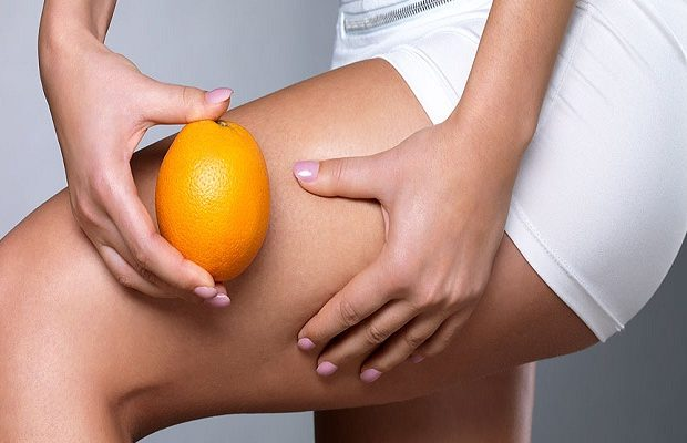 header-what-is-cellulite